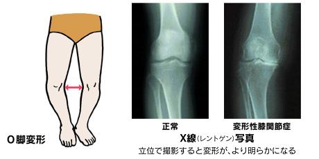変形性膝関節症で膝の痛みが出る状態