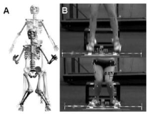 仙台で膝の痛みを筋膜から治療をする整体