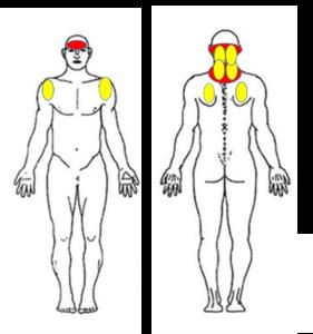 仙台の整体で肩こりからの頭痛に筋膜を施術