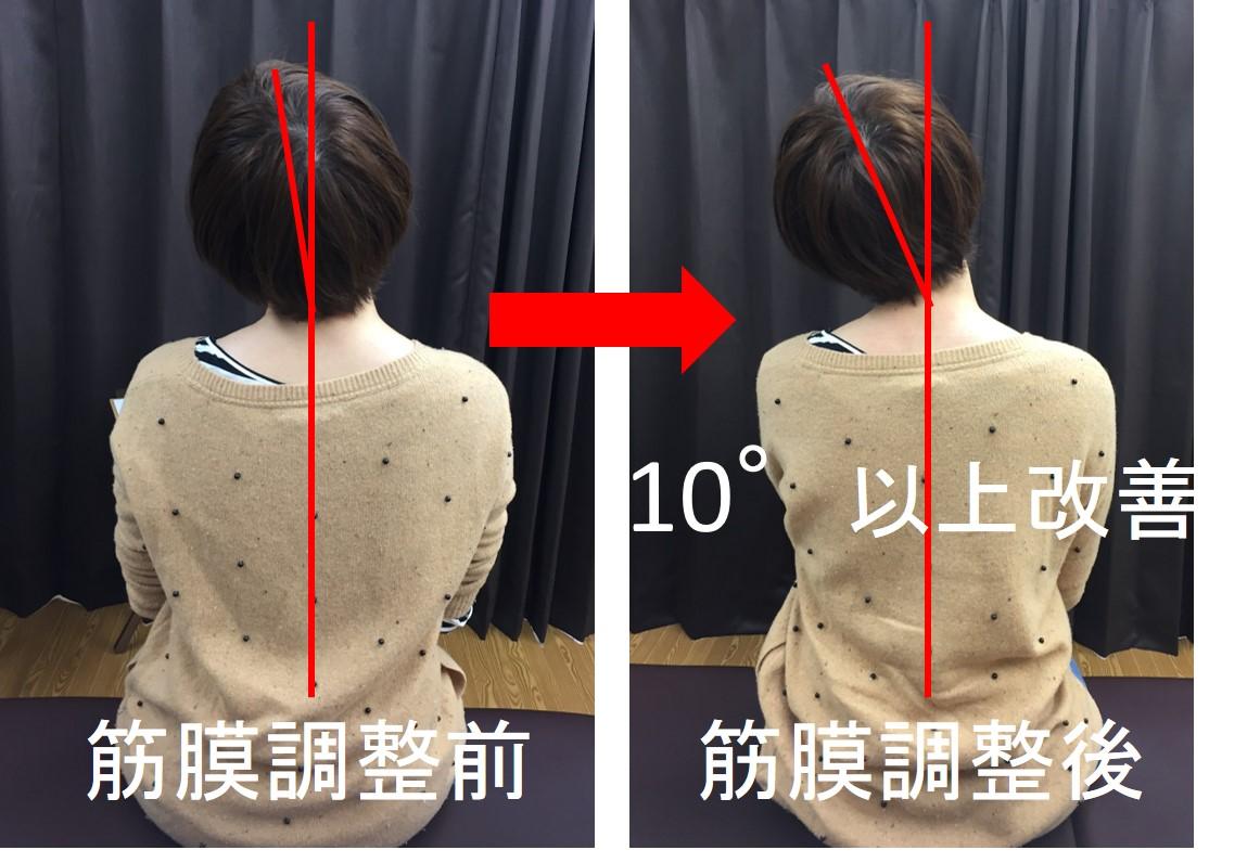 仙台の整体で寝違えに筋膜調整を受けた後の変化