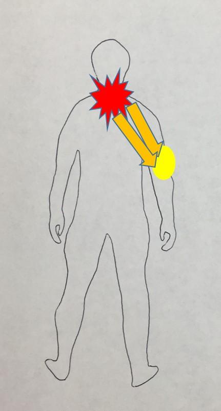 仙台の整体で肩こりに筋膜を施術する理由