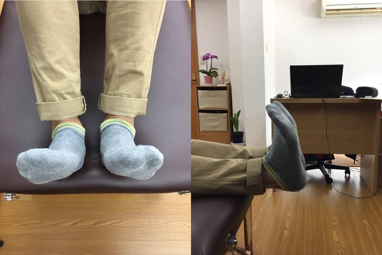アキレス腱の痛みに筋膜を治療した後の状態