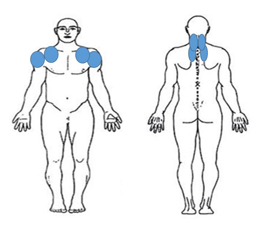 仙台の整体で寝違えに筋膜を施術するルーツ