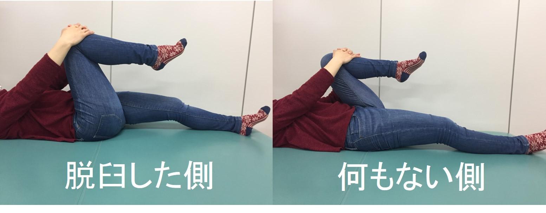 仙台で臼蓋形成不全に筋膜調整を行う整体の施術前