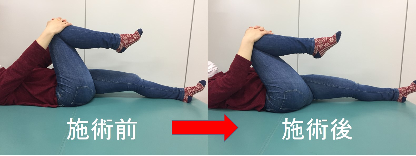 仙台で臼蓋形成不全に筋膜調整を行う整体での施術後の変化
