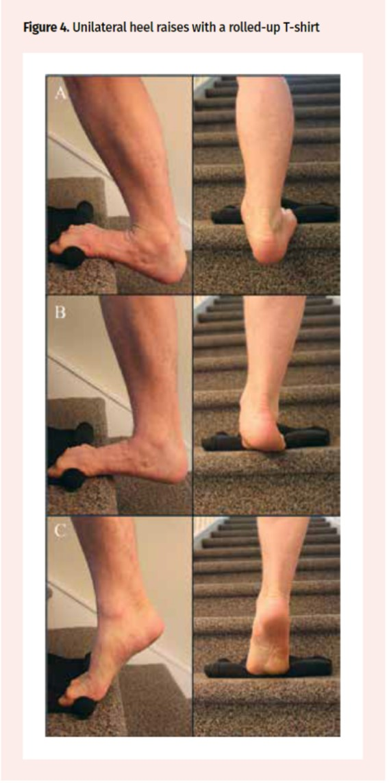 足底腱膜炎の治療としての筋トレ