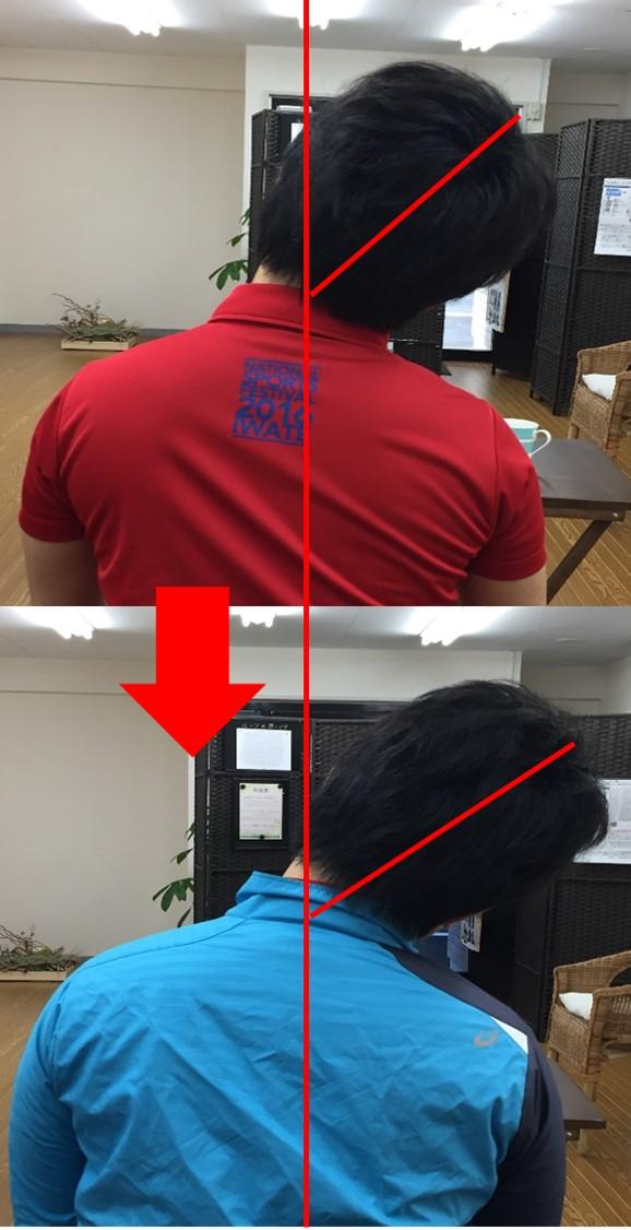 仙台の整体で肩と首のこりに筋膜を施術するルーツ