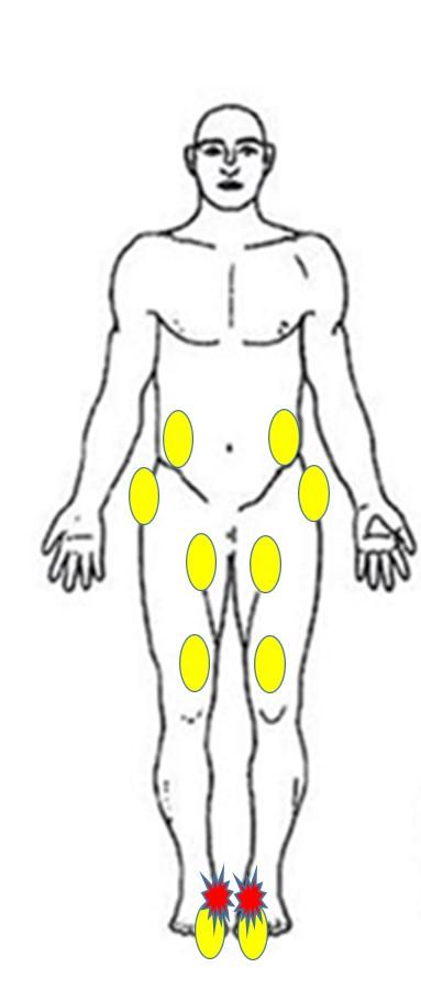整体で有痛性外脛骨に筋膜を治療した場所