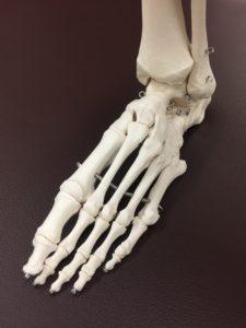 仙台で変形性足関節症に筋膜を治療する整体