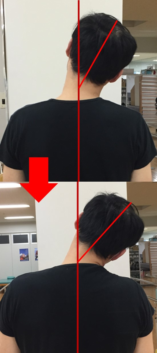 仙台の整体で首の痛みに筋膜を施術するルーツ