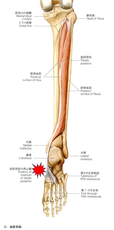有痛性外脛骨の原因と治療