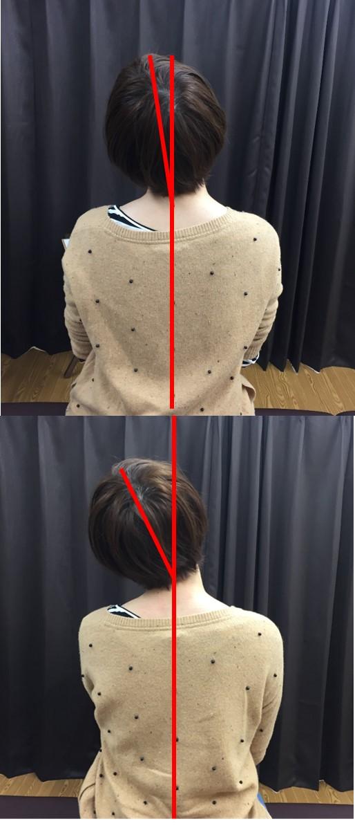 仙台の整体で肩と首の痛みに筋膜を施術するルーツ