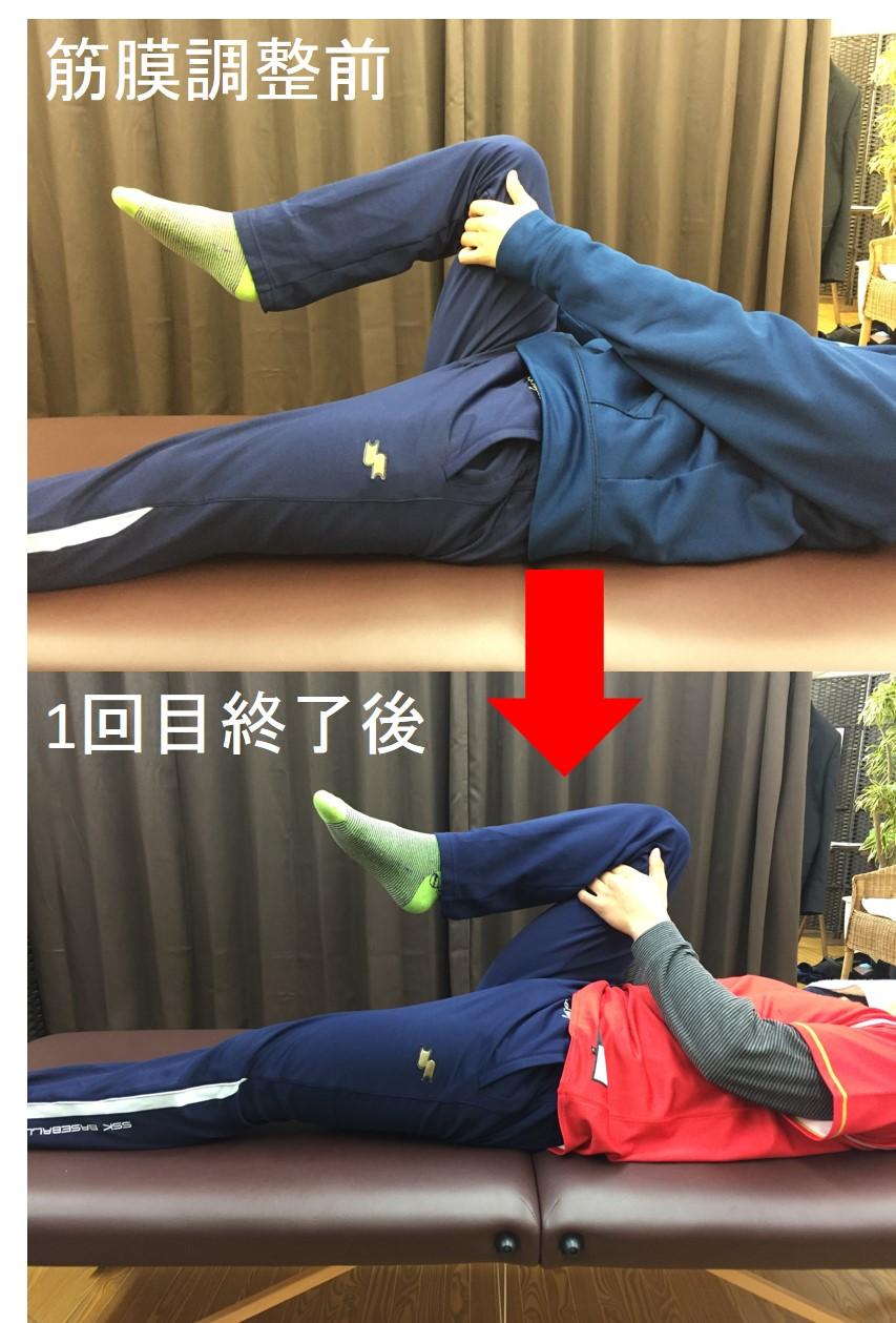 仙台でインピンジメントからの股関節痛で筋膜に施術を行う整体