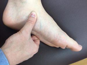 有痛性外脛骨に筋膜を治療する整体