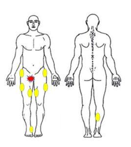 足の付け根の痛みに関連する筋膜をチェック